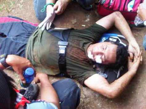 Om terjatuh, sedang dalam perawatan team medis.